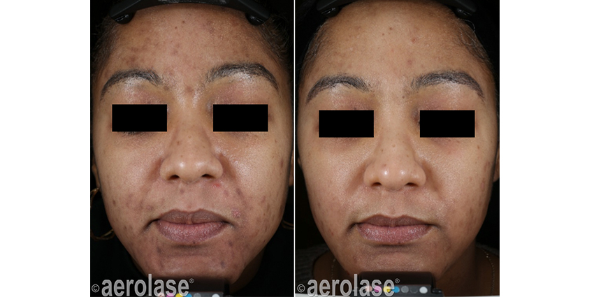 NeoClear Acne 5 Months After 3 Treatments David Goldberg MD