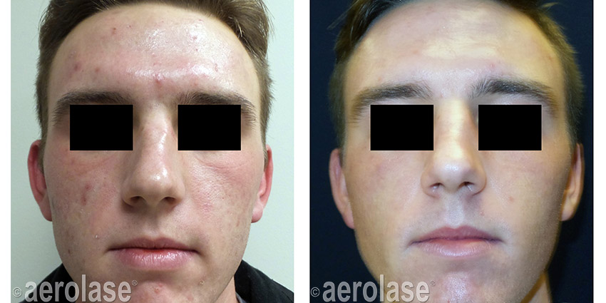 NeoClear Acne After 3 Treatments Kevin Pinski MD