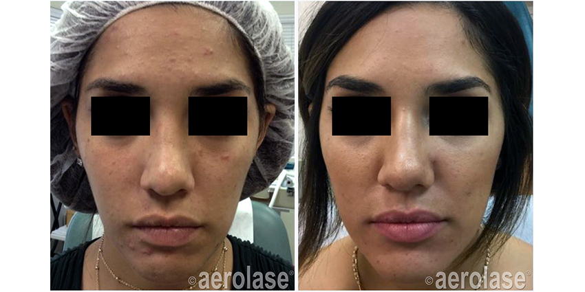 NeoClear Acne After 4 Treatments Mark Nestor MD