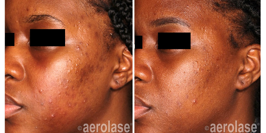 NeoClear Acne After 4 Treatments Michelle Henry MD