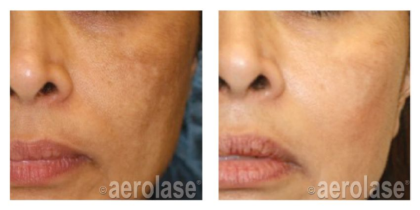 NeoSkin Melasma After 1 Treatment combined with Hydroquinone Cheryl Burgess MD