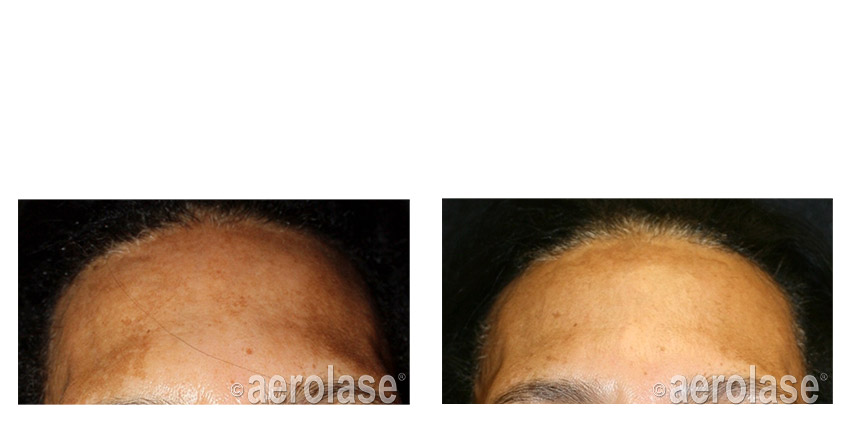 NeoSkin Melasma After 1 Treatment combined with TCA Peel Cheryl Burgess MD