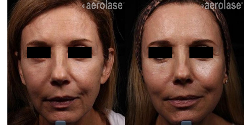 NeoSkin Rejuvenation After 2 Treatments combined with threads and filler One Aesthetics