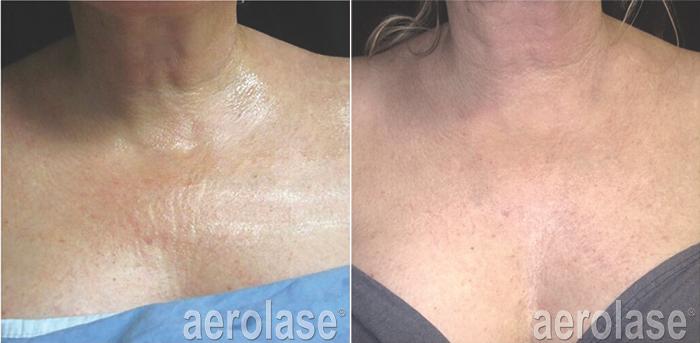 NeoSkin Rejuvenation After 4 Treatments Jason Emer MD