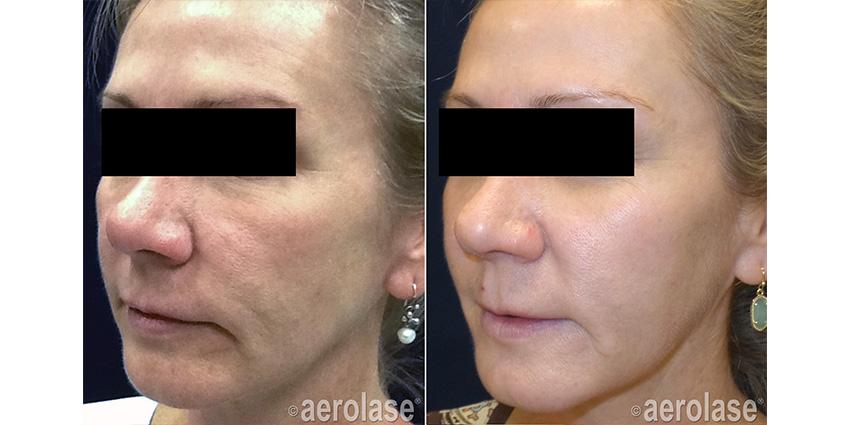 NeoSkin Rejuvenation After 4 Treatments Kevin Pinski MD