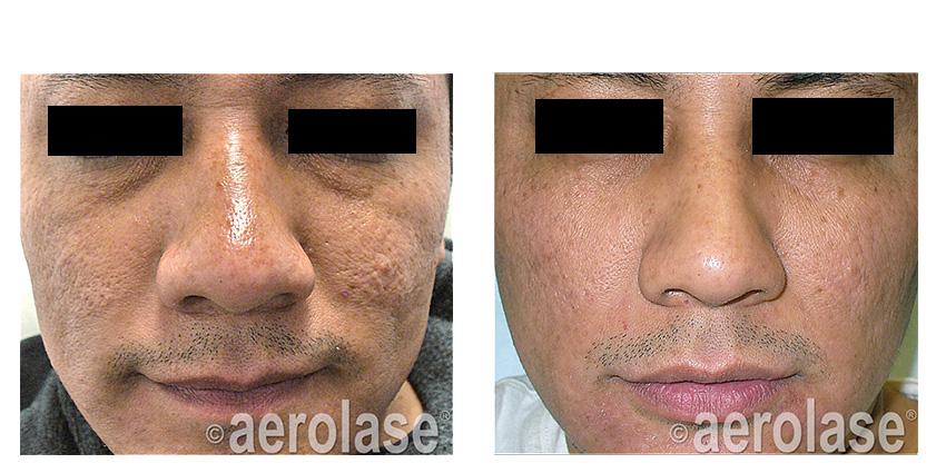 NeoSkin Rejuvenation After 7 Treatments Fran Cook Bolden MD