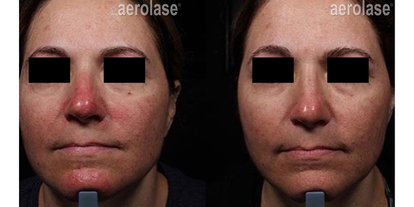 NeoSkin Rosacea 1 Week After 1 Treatment One Aesthetics